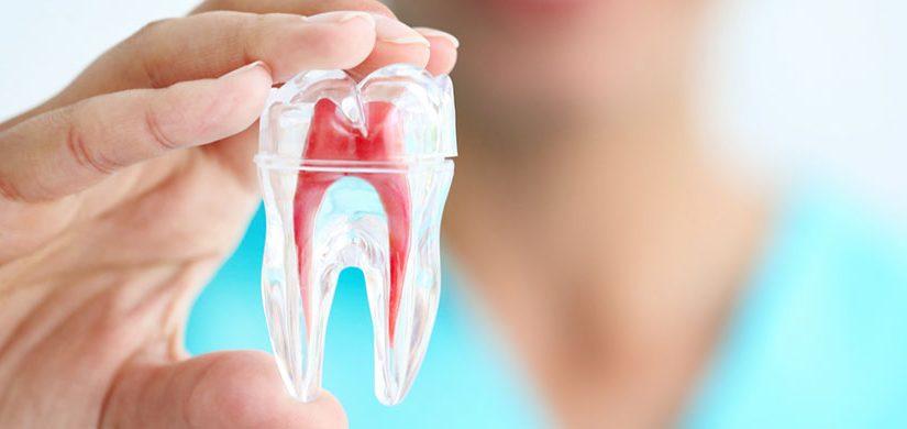 endodonti-1