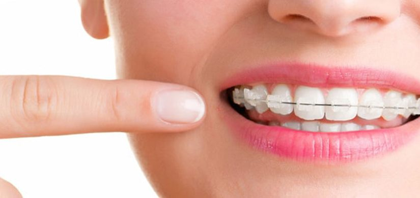 ortodonti-2