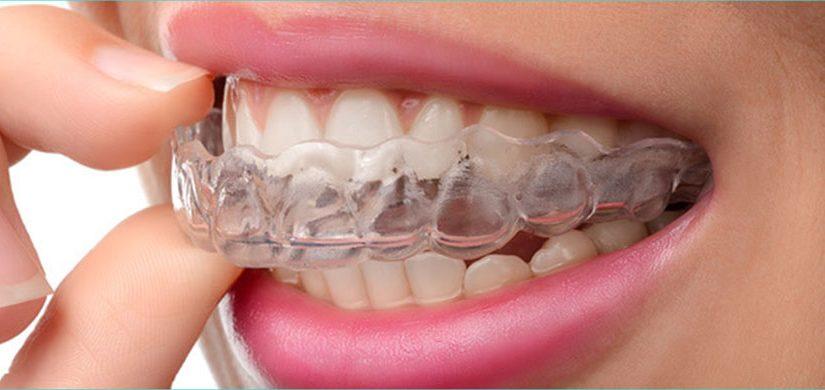 ortodonti-4